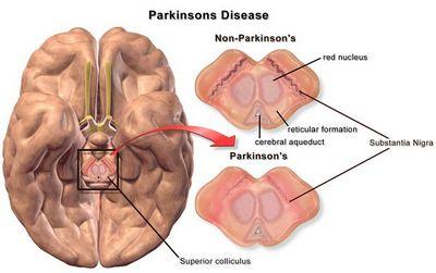 Intention Tremor pada Penderita Penyakit Parkinson tidak memiliki efek
